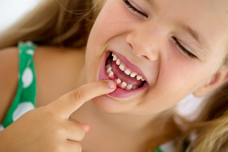 Reversing cavities naturally